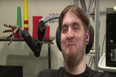 Histórico: homem tetraplégico sente toque após implante de chip cerebral