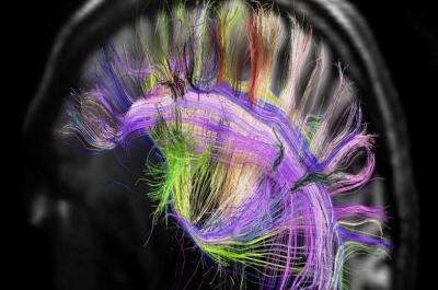 Possível solução para Alzheimer? Choque no cérebro pode 'reviver' memórias